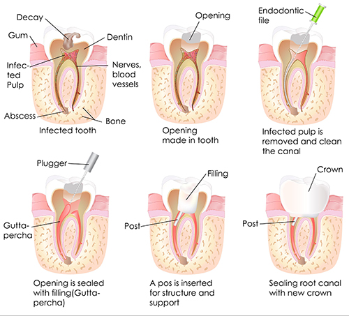 Root Canal Therapy in Bayside