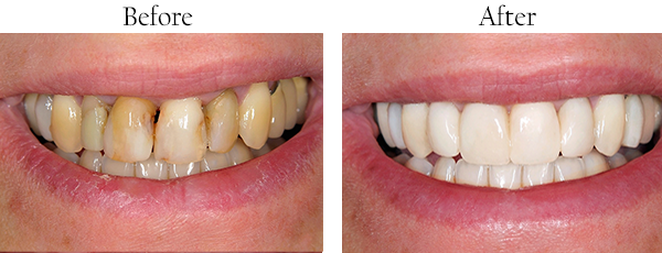Flushing Dental Images Smile Gallery Bayside Smile